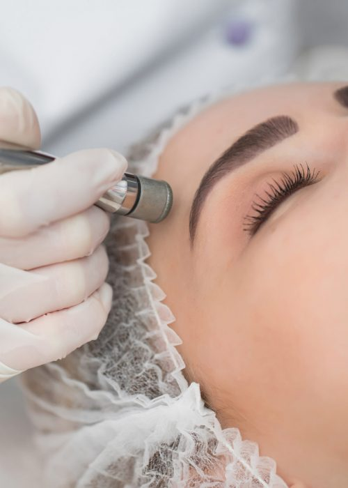 Diamond microdermabrasion, peeling cosmetic. woman during a microdermabrasion treatment in beauty salon